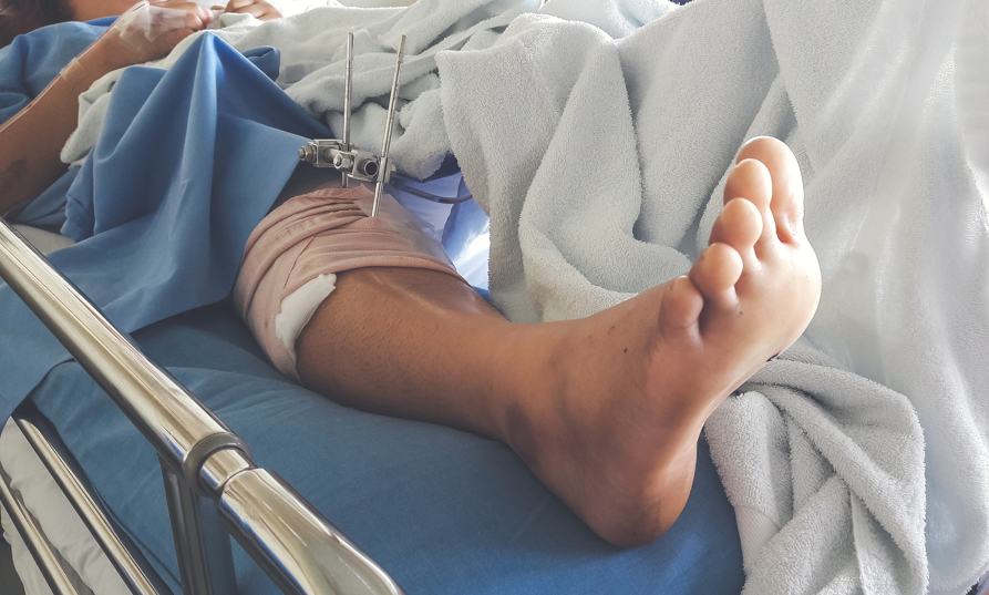 injured-leg-surgery-personal-injury